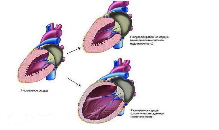 Гипертоническая болезнь с застойной сердечной недостаточностью